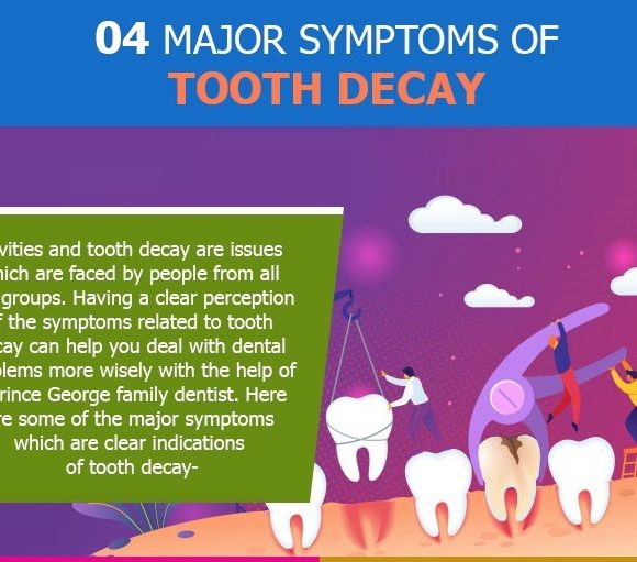 Infographic: 4 Clear Indications of Tooth Decay