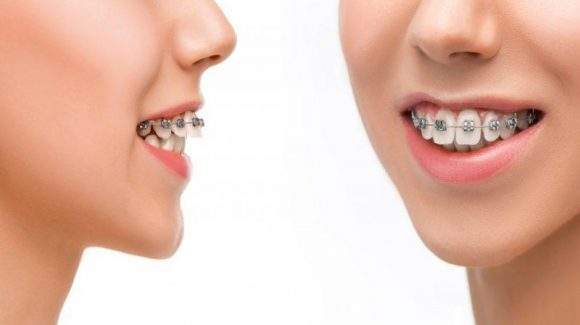 6 Great Ways An Excellent Dental Comes To Your Rescue