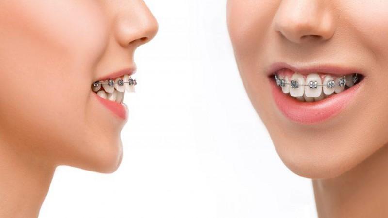 Excellent Dental